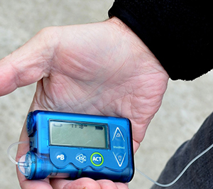 Le diabète de type 2 peut-il devenir un diabète de type 1?