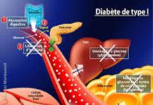 Quel est le dernier remède contre le diabète de type 1?