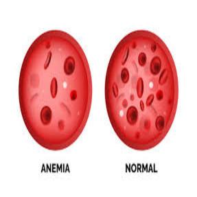 Diabète et anémie: connaissez vos risques et les Signes d'avertissement